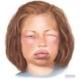quinke allergy