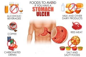 foods to avoid stomach ulcer rev