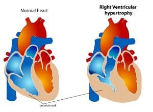 right-ventricular-hypertrophy