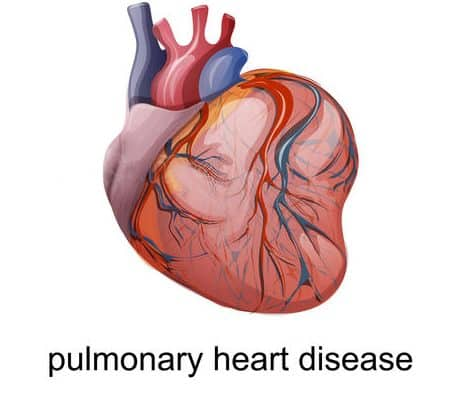pulmonary-heart-disease