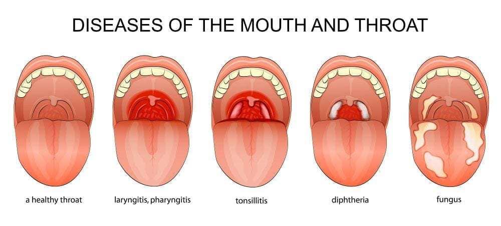 info pharyngitis
