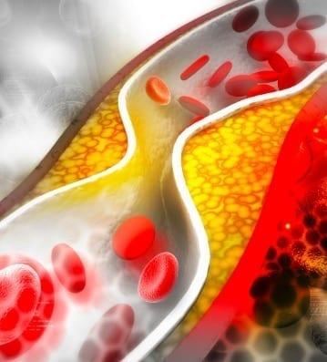zetia high cholesterol