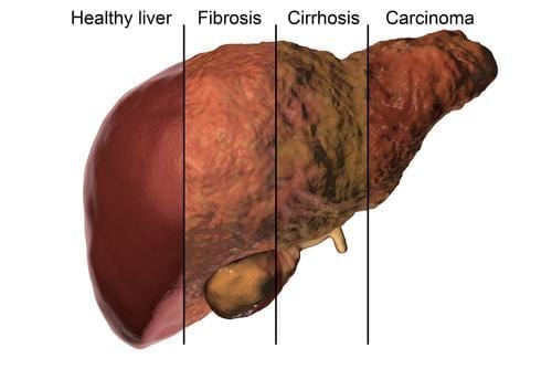 low ptt and liver fibrosis