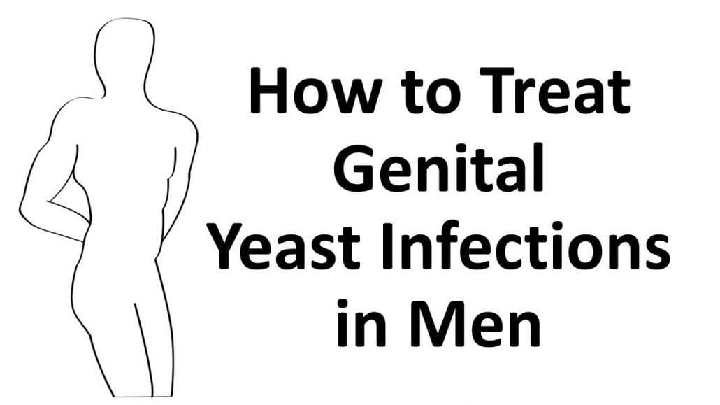 how to treat genital yeast infection in men