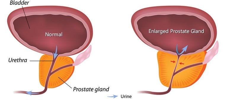 benign prostate enlargement treatment