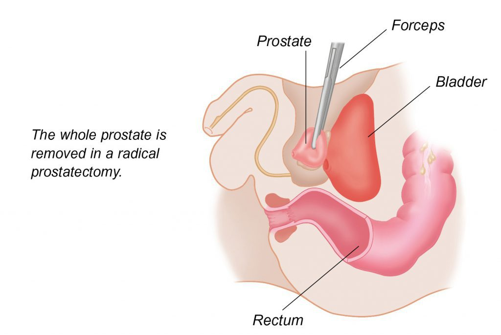 prostatectomy ed