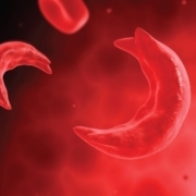 cickle cell disease erectile dysfunction