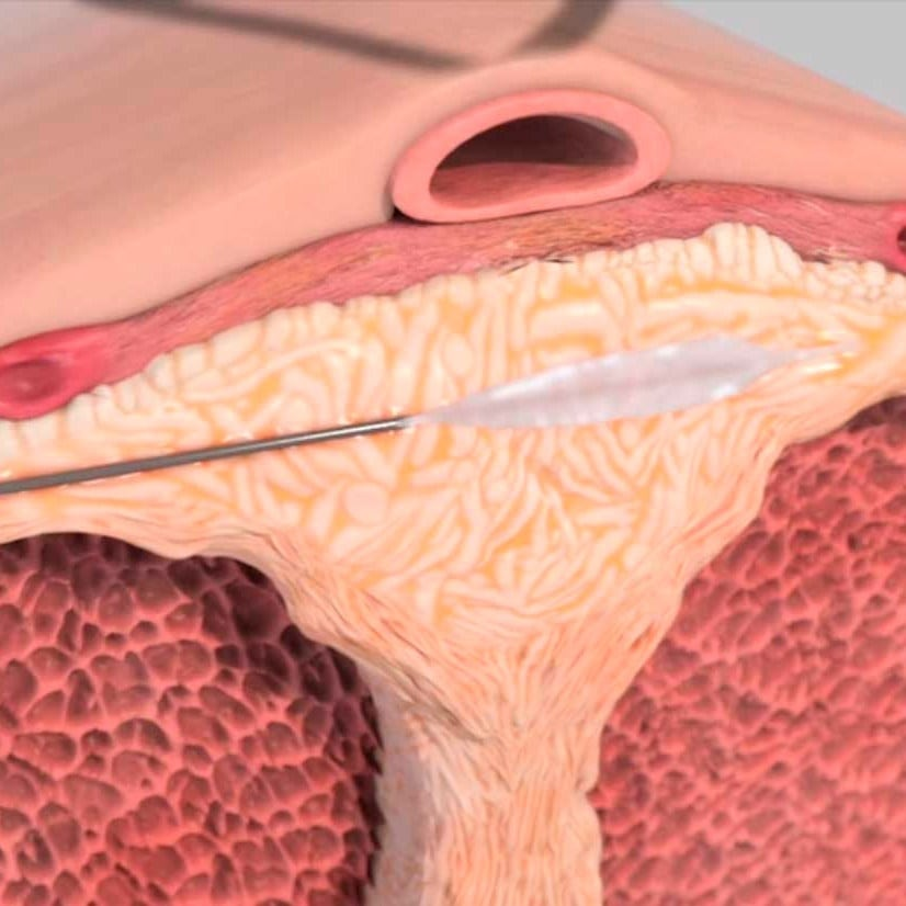priapism fibrosis