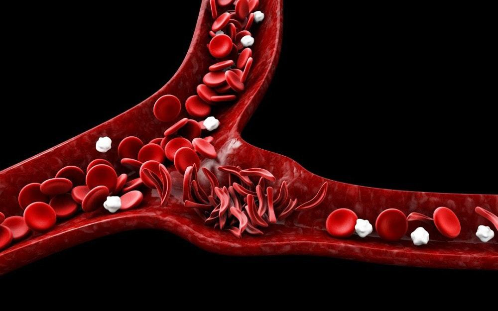 sickle cell disease causes
